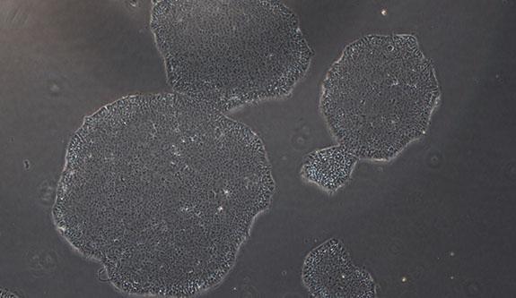 iPS人诱导多能细胞